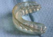 Ortodonzia intercettiva Manduria